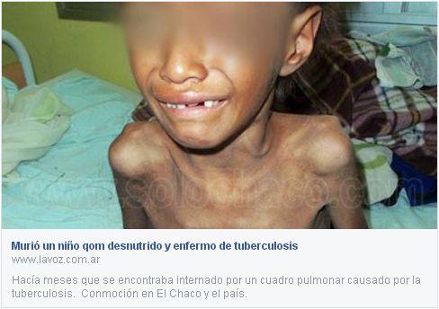 Vergüenza nacional: Otro niño argentino muere desnutrido, mientras el gobierno más corrupto de nuestra historia sigue robando desde el poder
